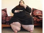 Choáng với màn giảm cân kinh thiên động địa của cô gái 300kg