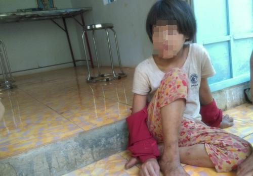 Tương lai mờ mịt của bé gái từng bị mẹ cắt gân chân - 1