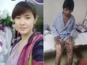 Tin tức trong ngày - Ký ức đau thương của người vợ sống sót sau khi bị chồng nhốt rồi tưới xăng đốt cả hai