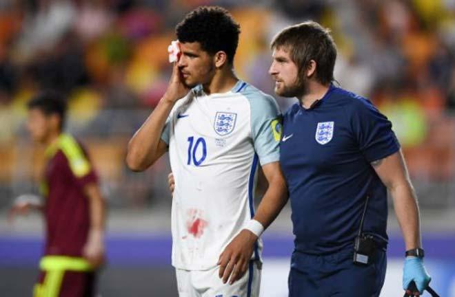 Chung kết U20 World Cup Anh - Venezuela: Đổ máu & quả 11m bước ngoặt - 1