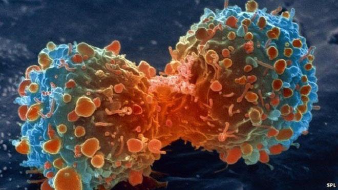 Bất cứ ai cũng phải nhớ 9 dấu hiệu này của bệnh ung thư - 1
