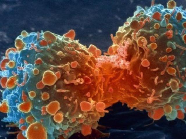 Bất cứ ai cũng phải nhớ 9 dấu hiệu này của bệnh ung thư