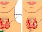 Phát hiện sớm ung thư tuyến giáp nhờ làm xét nghiệm này