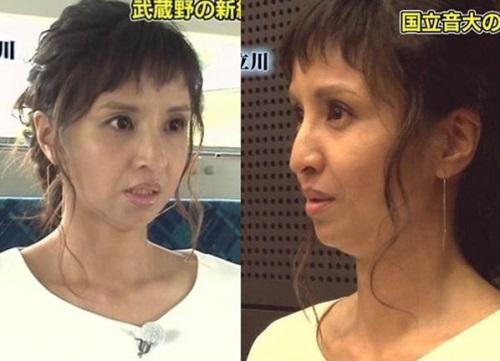 Sốc: Mỹ nhân Nhật già như bà lão 60 vì ham thẩm mỹ - 1