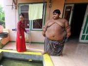 Sức khỏe đời sống - Cậu bé béo nhất thế giới phải phẫu thuật cắt dạ dày