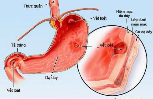 Tưởng con bị giun hoá ra viêm loét dạ dày vì lây vi khuẩn HP từ mẹ - 2