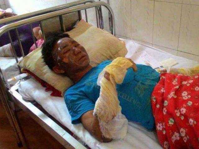Nổ thùng phuy, hai chân người đàn ông bị dập nát - 2