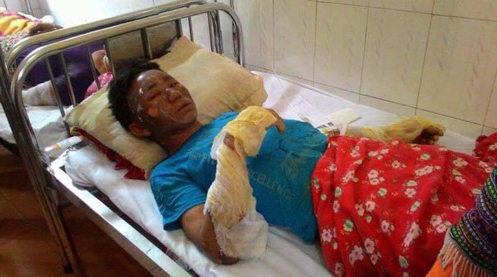 Nổ khí gas, 10 người trong một gia đình bị bỏng nặng - 1