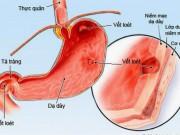 Sức khỏe đời sống - Tưởng con bị giun hoá ra viêm loét dạ dày vì lây vi khuẩn HP từ mẹ