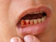 Sức khỏe đời sống - Mệt mỏi, chảy máu chân răng: dấu hiệu của bệnh cực kỳ nguy hiểm