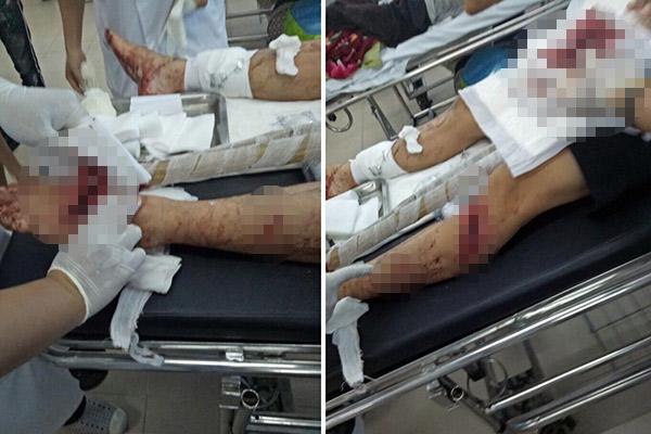 """Bênh vợ bị đánh, chồng bị nhóm """"giang hồ"""" chém nhập viện - 1"""