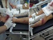 Bênh vợ bị đánh, chồng bị nhóm  giang hồ  chém nhập viện