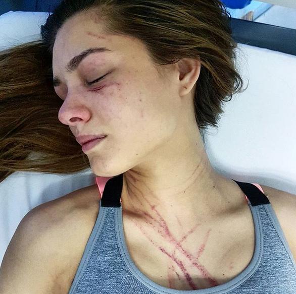 Hỗn chiến hoa hậu Venezuela bị nữ ca sĩ đánh trọng thương - 1