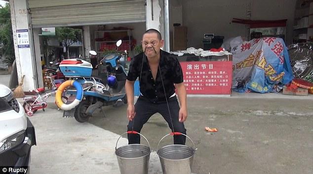 Rắn độc luồn từ mũi xuống miệng người đàn ông Trung Quốc - 1