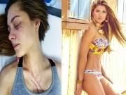 Thời trang - Hỗn chiến hoa hậu Venezuela bị nữ ca sĩ đánh trọng thương