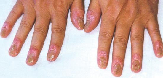 Nghiên cứu mới điều trị bệnh vảy nến móng - 1