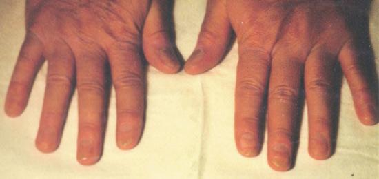Nghiên cứu mới điều trị bệnh vảy nến móng - 2