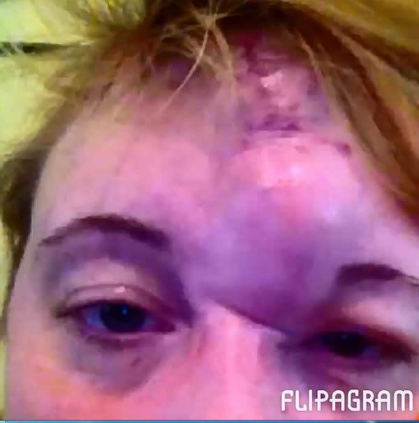 Những tình huống phát hiện ung thư siêu kỳ quặc - 6