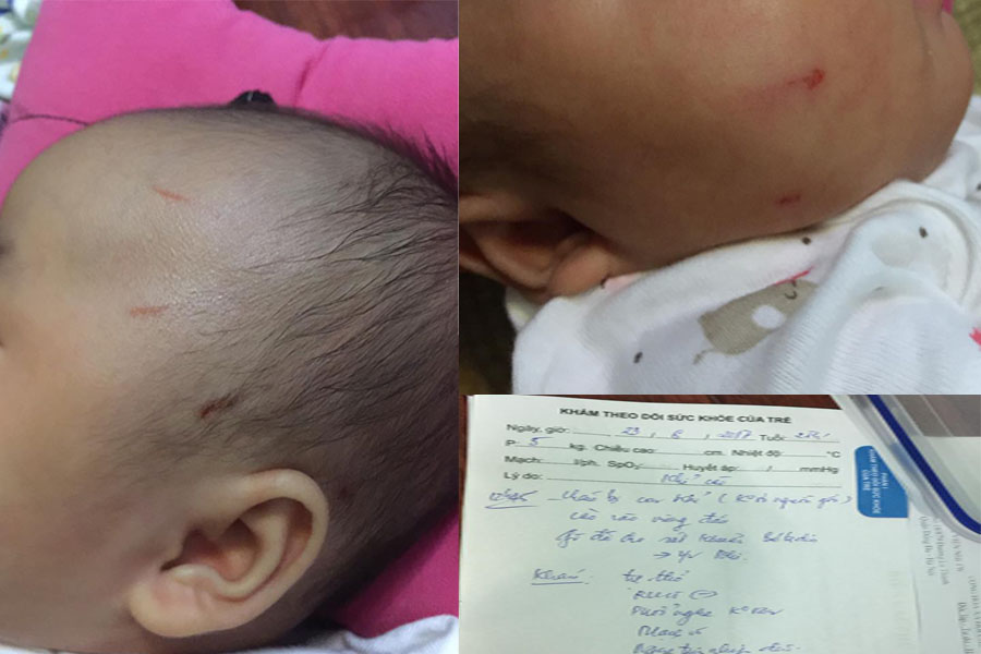 Kinh hãi: Khỉ đực vào nhà tấn công bé sơ sinh ngay giữa Thủ đô - 2