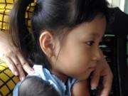 """Bé gái 5 tuổi mọc lông đầy mình ở Cà Mau:  """" Con ngứa và đau lắm """""""