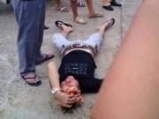 Tin tức trong ngày - Nổ súng trấn áp nam thanh niên cắn tay, xô ngã CSGT