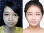Làm đẹp - Bất ngờ với nụ cười đẹp của 2 cô gái Việt từng sứt môi