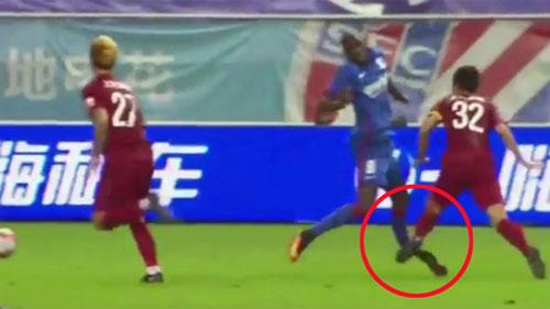 """Những chấn thương ghê rợn: Demba Ba """"nhập hội"""" Ronaldo"""