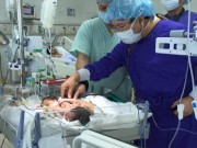 Tin tức trong ngày - Không thể tách rời 2 bé song sinh dính liền ở Hà Giang