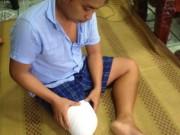 """Tin tức trong ngày - Vụ bệnh nhân bị cưa chân ở TP.HCM: """"Đứt gánh"""" giấc mơ"""