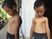 Bạn trẻ - Cuộc sống - Gia cảnh nghèo của cậu bé 4 tuổi dị dạng lồng ngực