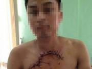 Sức khỏe đời sống - Cứu sống bệnh nhân bị tai nạn, tim phổi lộ ra ngoài thành ngực