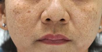 Điều trị nám bằng laser: Cẩn thận rước họa vào thân.
