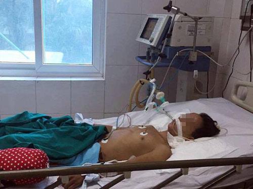 Hàng chục người nhập viện, 1 người tử vong do ăn côn…