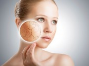 Làm đẹp - Cách làm mặt nạ chuối và mặt nạ sữa đặc trị cho da khô