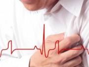 Sức khỏe đời sống - Người nghèo và người ly hôn dễ tái phát bệnh nhồi máu cơ tim và đột quỵ