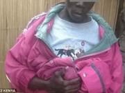 """Phi thường - kỳ quặc - Khốn khổ vì """"của quý"""" dài gấp 10 lần người thường ở Kenya"""
