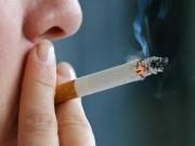 """Sức khỏe đời sống - Những quan niệm sai lầm về ung thư phổi """"ai cũng cho là đúng"""""""