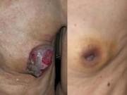 Sức khỏe đời sống - Quái gở những quý ông đột nhiên mắc bệnh phổ biến của phụ nữ