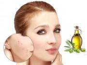 Làm đẹp - Không lo sẹo mụn khi biết cách sử dụng dầu ô liu