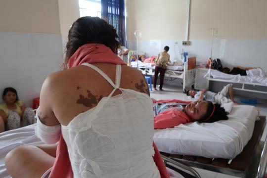 Lời kể kinh hoàng của 4 nạn nhân bị tạt a xít - 8