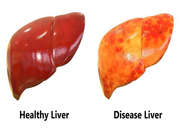 Bệnh nhân xơ gan nên ăn và nên tránh thực phẩm gì - 1