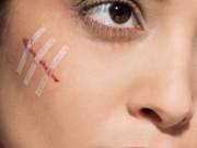 Tin tức sức khỏe - Cách đơn giản khiến sẹo dù to hay nhỏ, sẹo mới hay lâu ngày đều mờ cực nhanh!