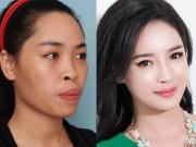 """Hot girl Nam Định ước tính  """" đập toàn mặt """"  tốn 1,5 tỷ đồng"""