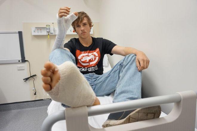 Người đàn ông có ngón chân cái mọc trên bàn tay - ảnh 1