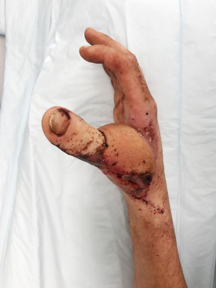 Người đàn ông có ngón chân cái mọc trên bàn tay - ảnh 2