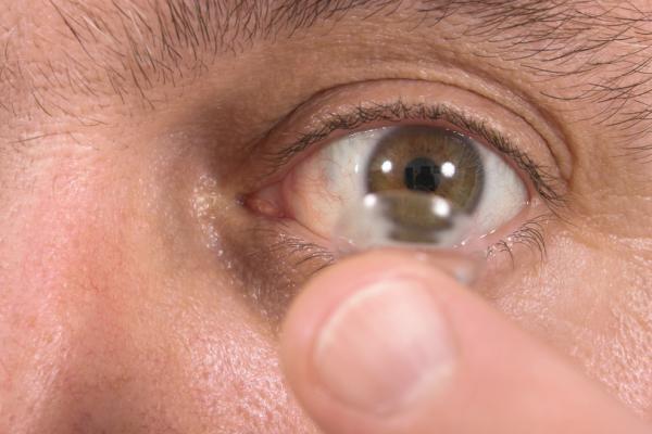 Khó tin: Để quên 27 kính áp tròng trong mắt - 1
