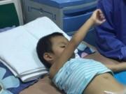 Sức khỏe đời sống - Hàng loạt trẻ bị sùi mào gà sau cắt bao quy đầu: Sở Y tế Hưng Yên nói gì?