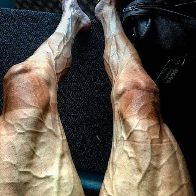 """Hình ảnh gây choáng: Đua xe đạp số 1 thế giới, đôi chân """"biến dạng"""" - 1"""