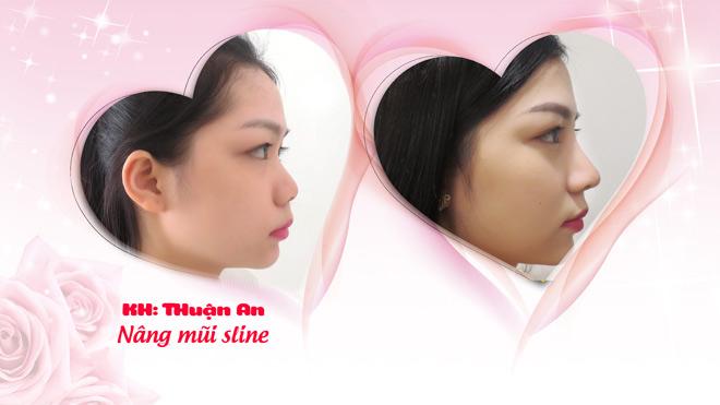 Cô gái nâng mũi trở thành hotgirl gây xôn xao - 3
