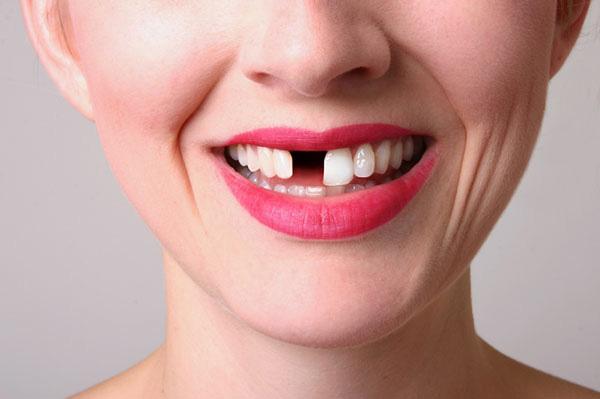 Chảy máu chân răng khi đánh răng: Dấu hiệu chớ coi thường! - 1
